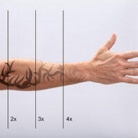 Laser Tattoo Removal On Man's Hand Against White Background