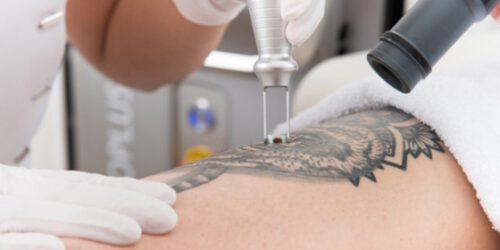 tattoo-verwijderen
